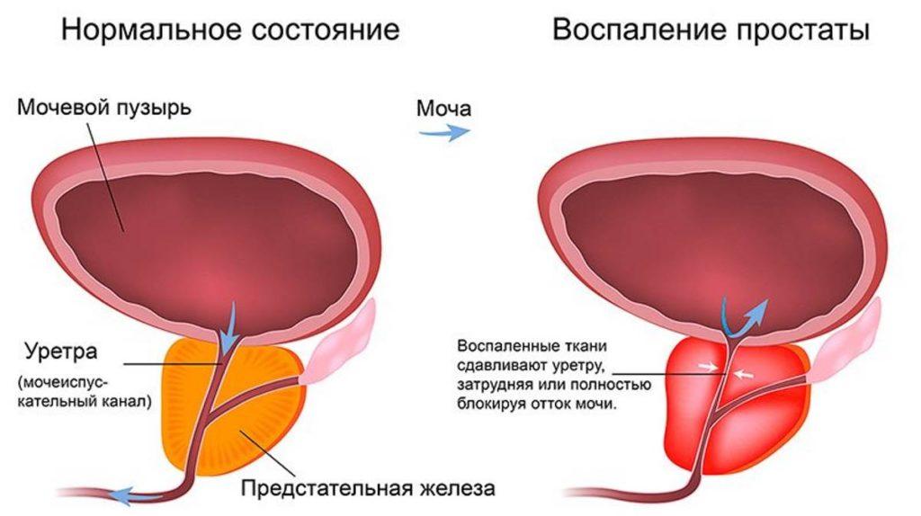 Боль в простате при эякуляции