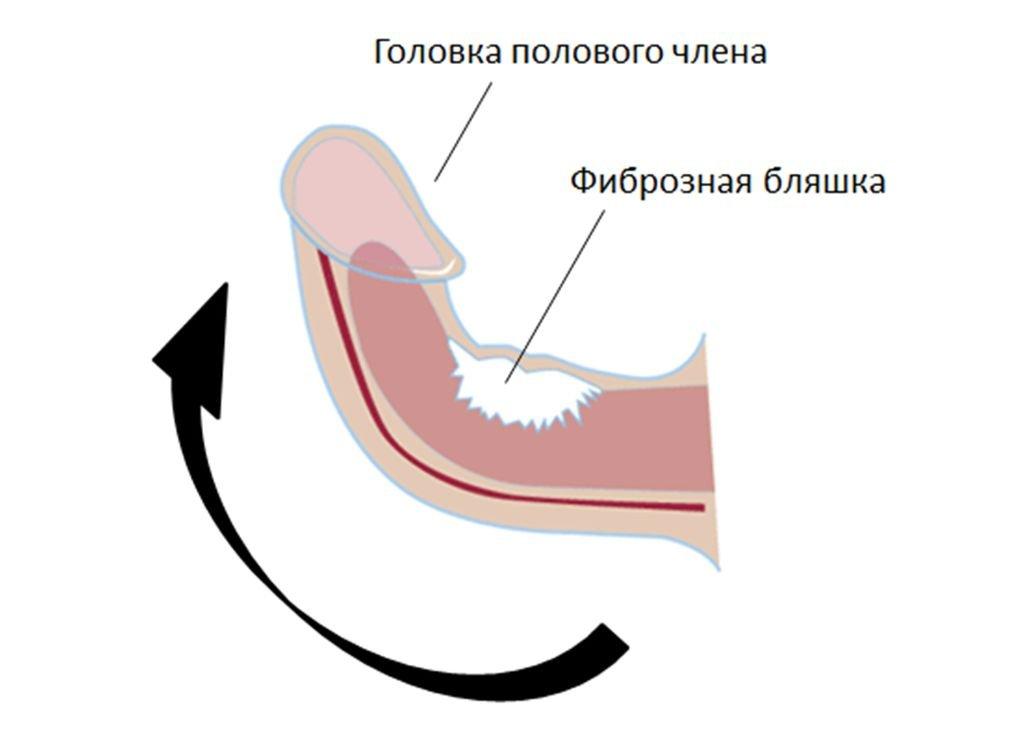 Кривой член при болезни Пейрони