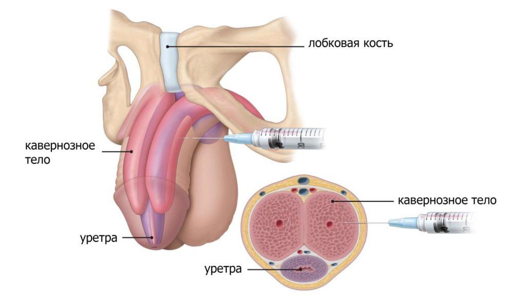 Инъекции пенис