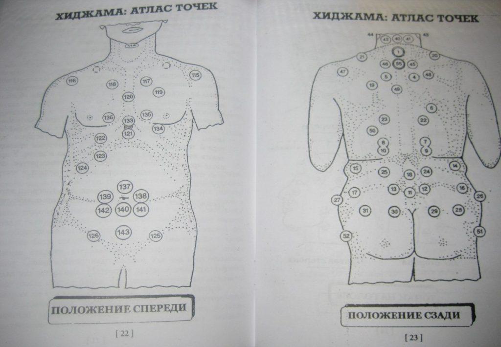 Точки хиджамы от простатита