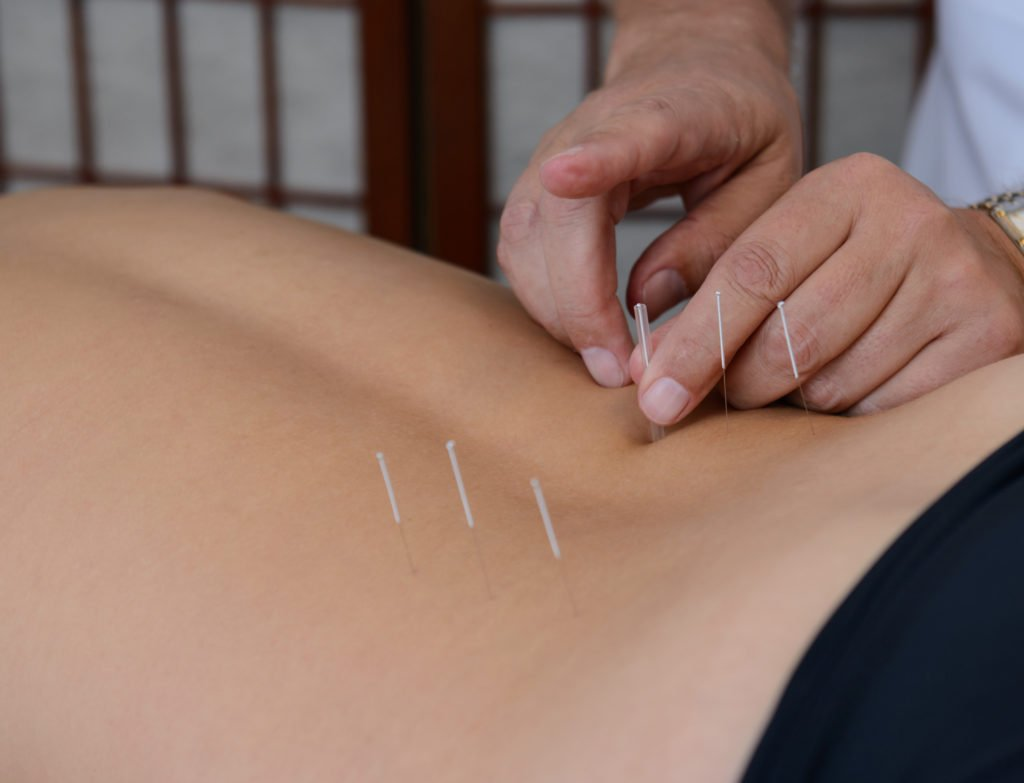 Аккупунктура при лечении простатита
