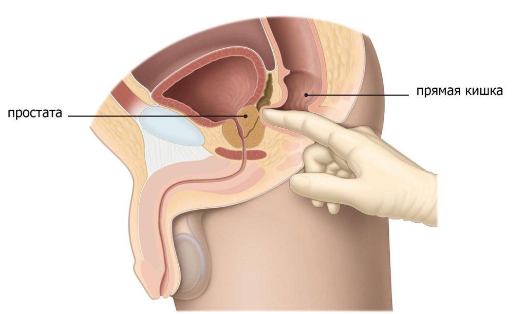 Предохраняться ли при лечении простатита список лекарство от простатита отзывы
