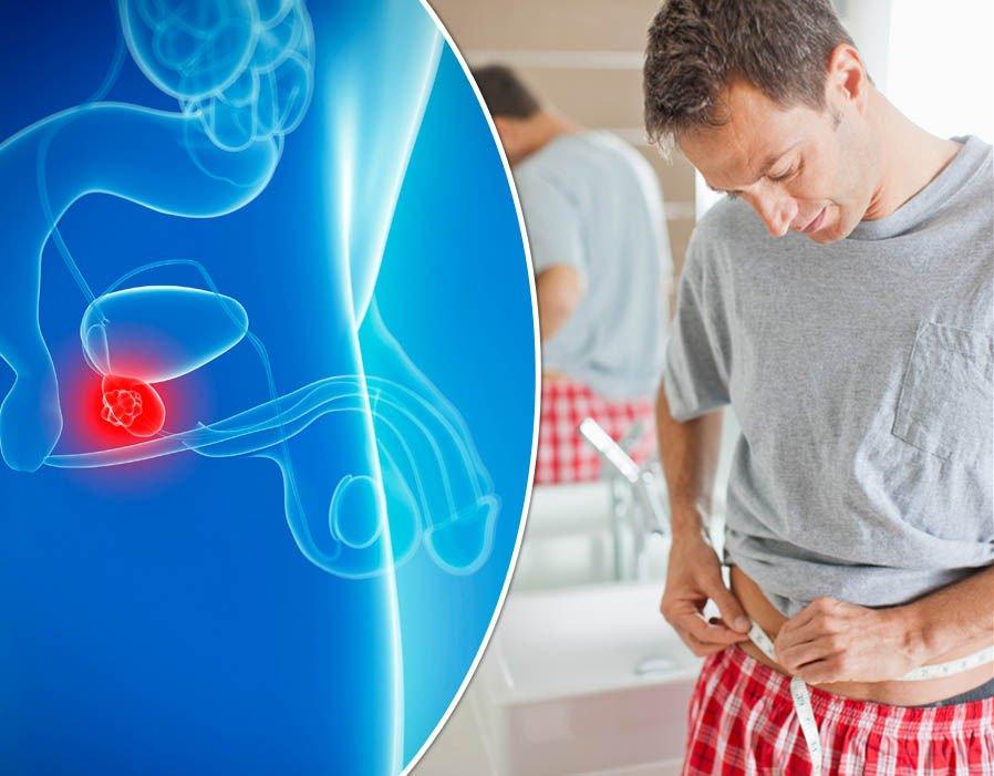 Рак простаты: симптомы, методы лечения и прогноз