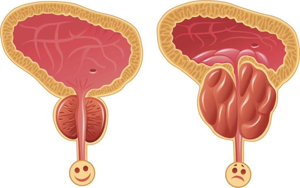 Что такое аденома простаты: причины, симптоматика и лечение