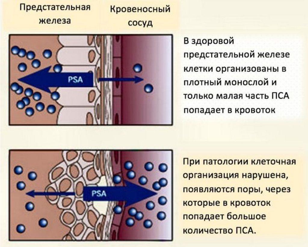 Уровень ПСА при аденоме простаты