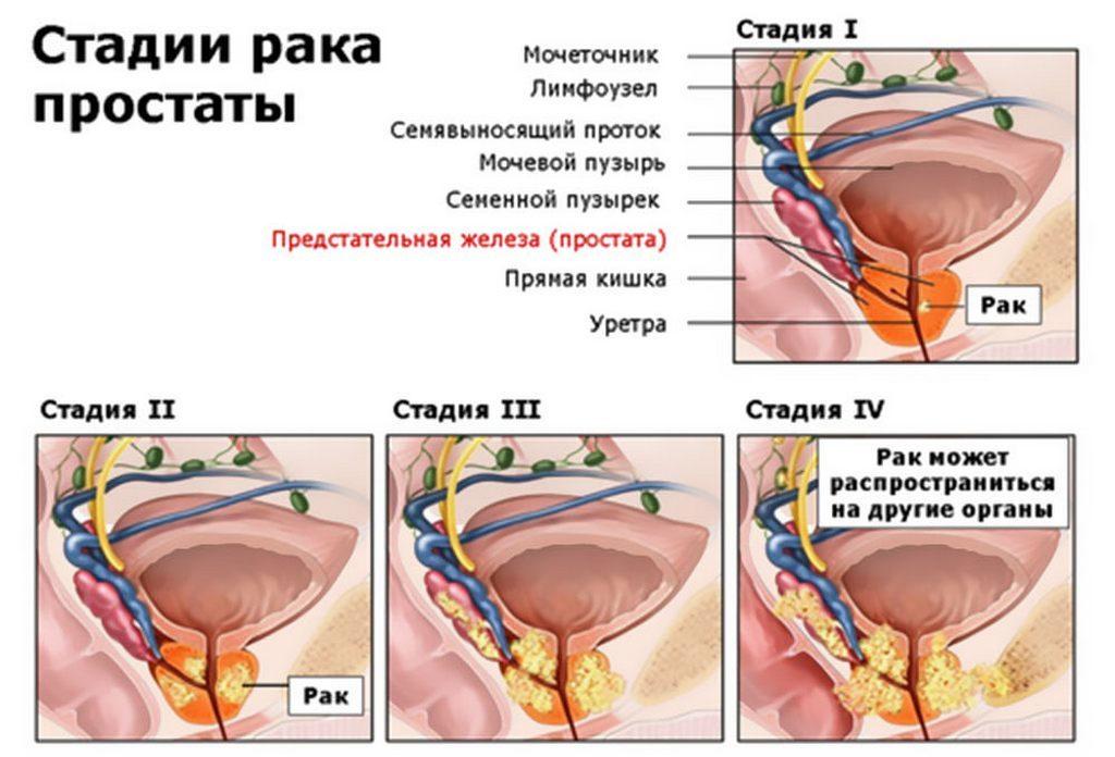 Этапы развития рака простаты