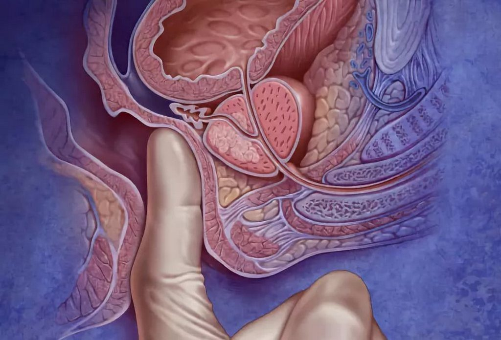 Ректальная диагностика предстательной железы