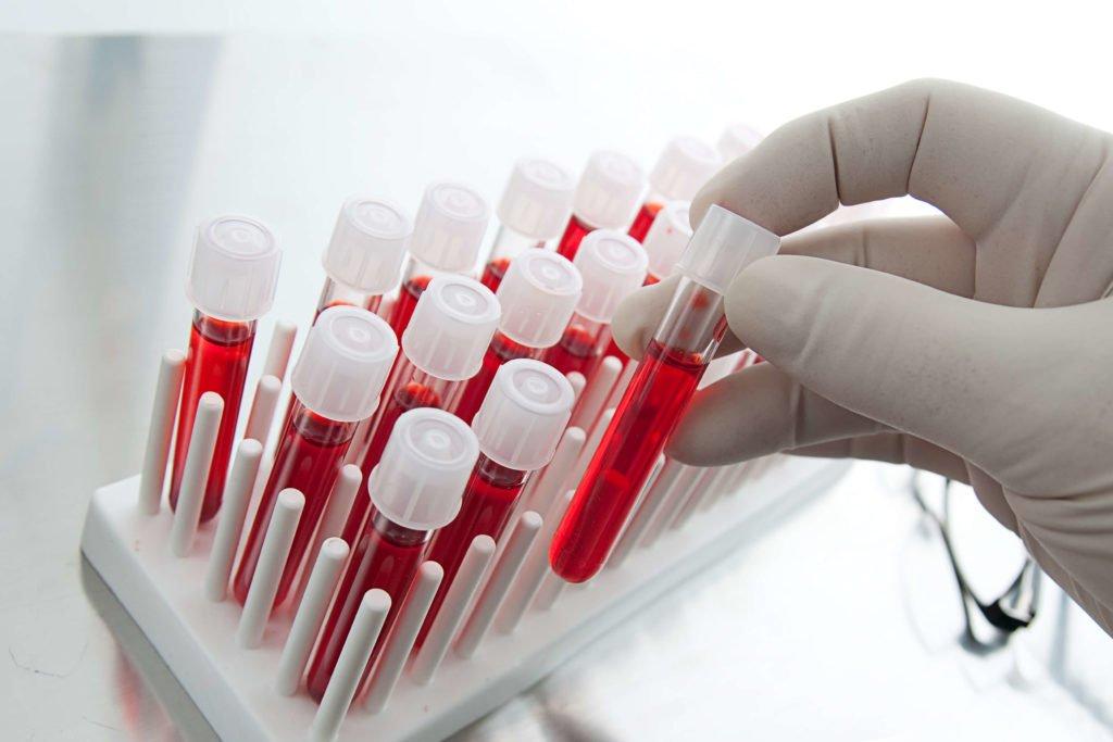 Анализы на рак простаты: перечень исследований, показатели нормы и патологии
