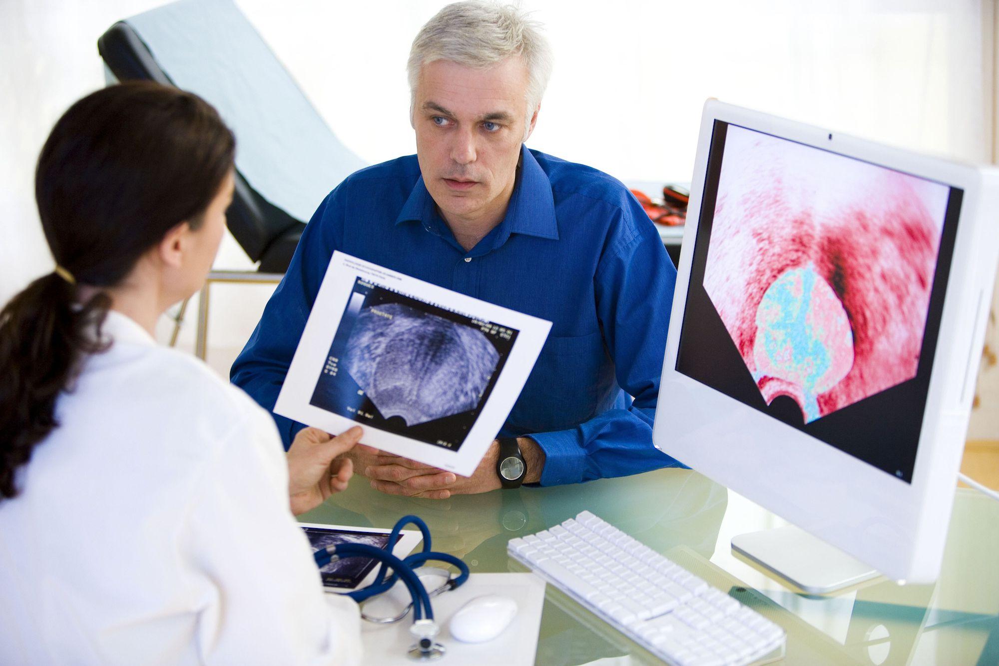 Современные методы лечения рака простаты