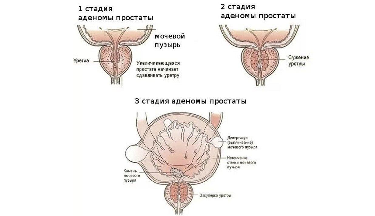 Стадии развития аденомы простаты