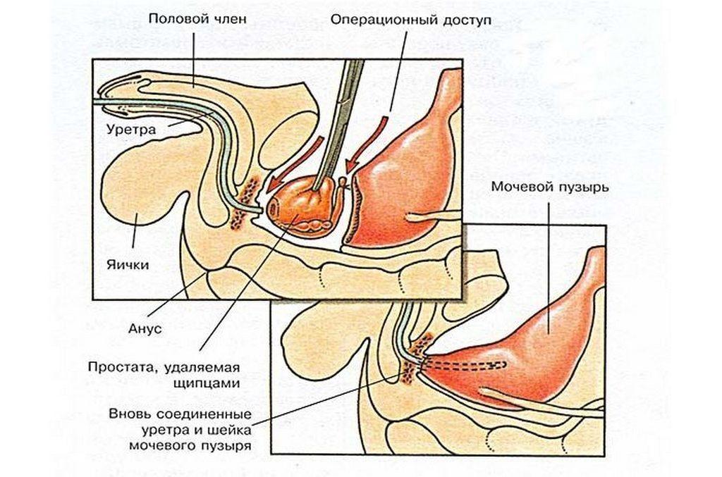 Особенности простатэктомии
