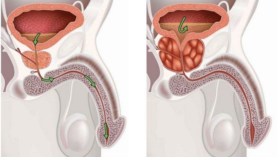 Аденома простаты: причины развития и методы профилактики