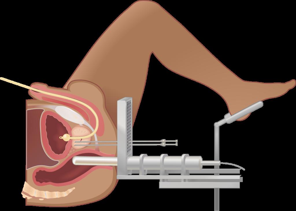 Брахитерапия при раке простаты: суть метода, стоимость и отзывы мужчин