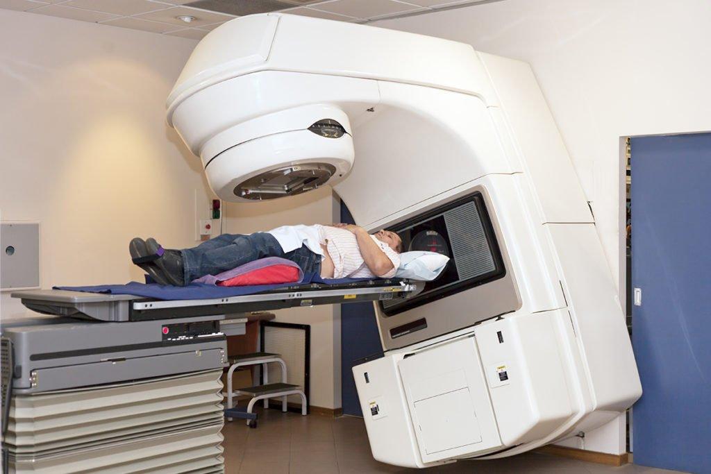 Радиотерапия рака простаты 3 стадии