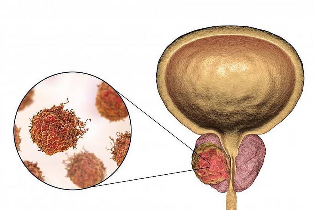 Рак предстательной железы - симптомы и лечение