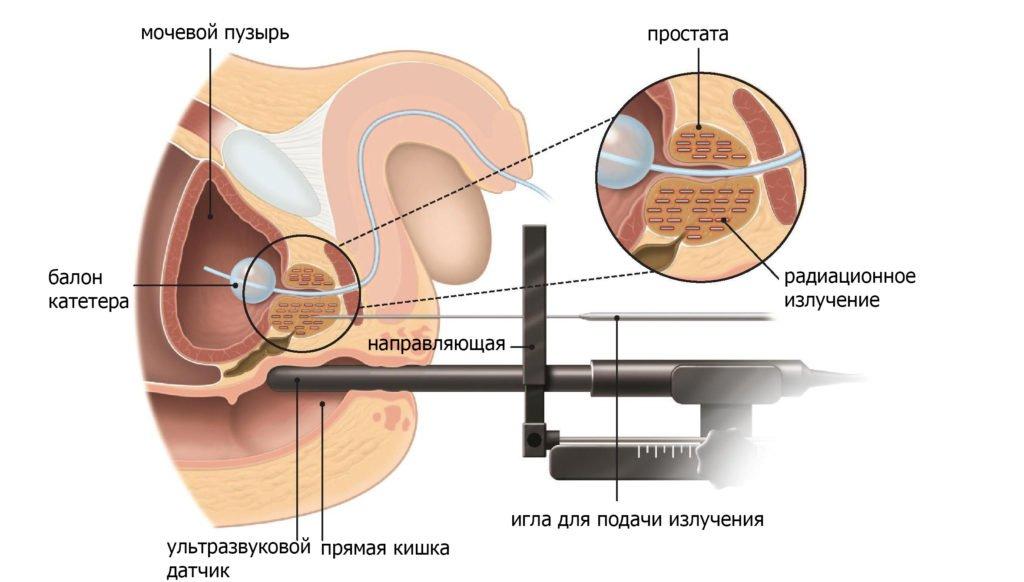 Брахитерапия при раке простаты