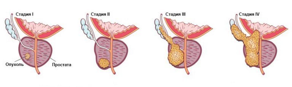 Стадии рака предстательной железы у мужчин