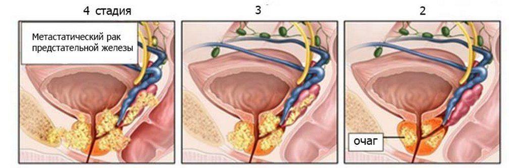 Причины развития рака предстательной железы