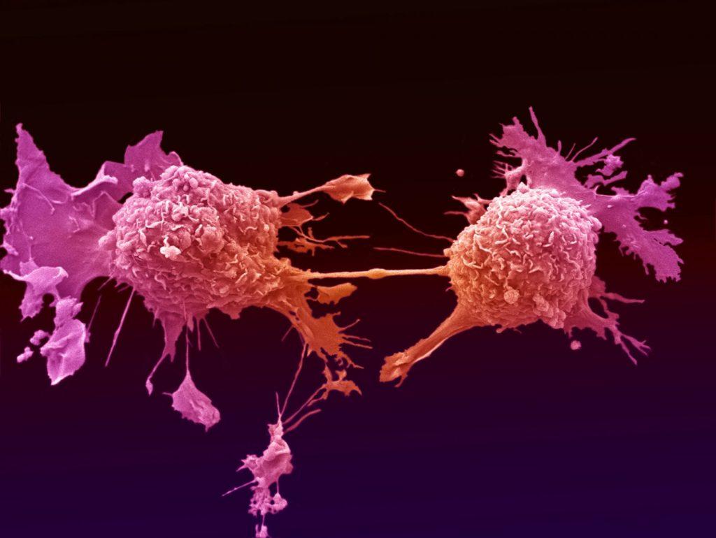 Метастазы при раке простаты: симптомы, лечение и прогноз