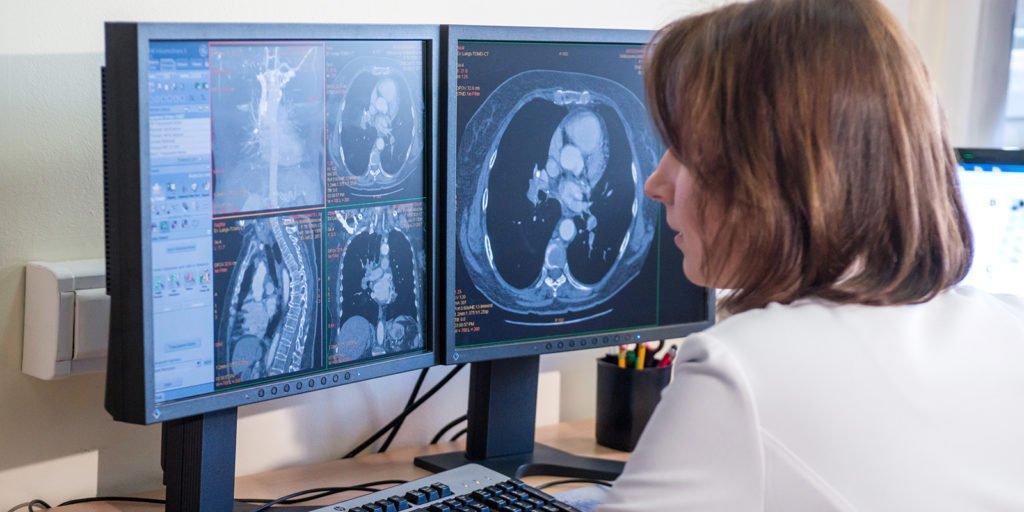 Методы диагностики рака предстательной железы у мужчин