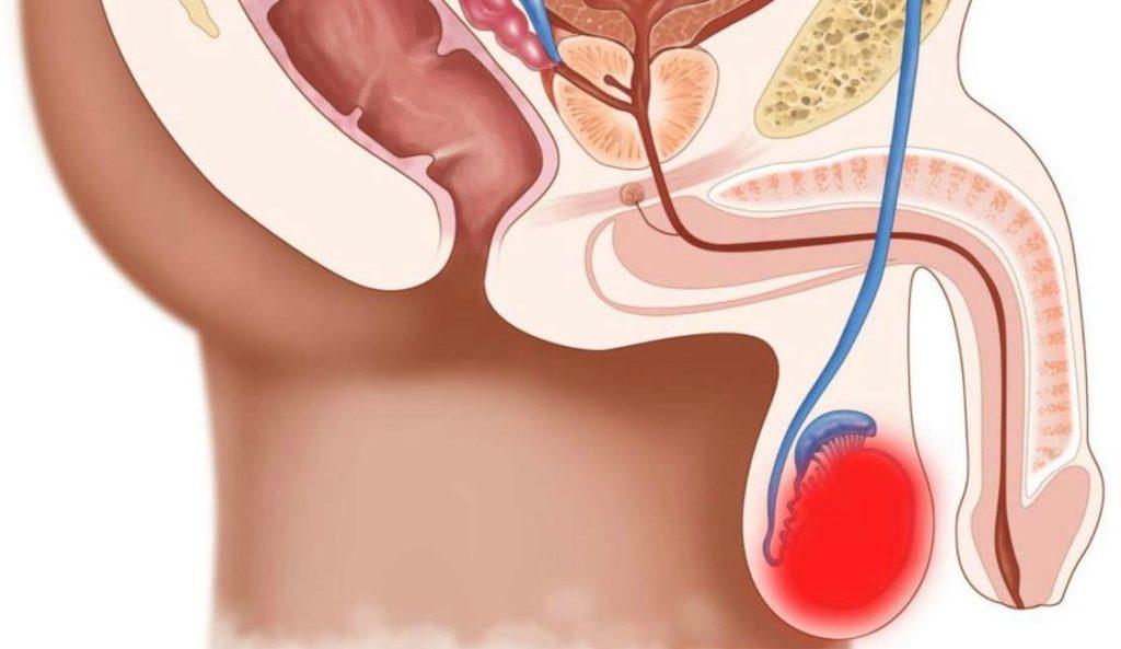 Увеличение яичек вследствие опухолевого образования