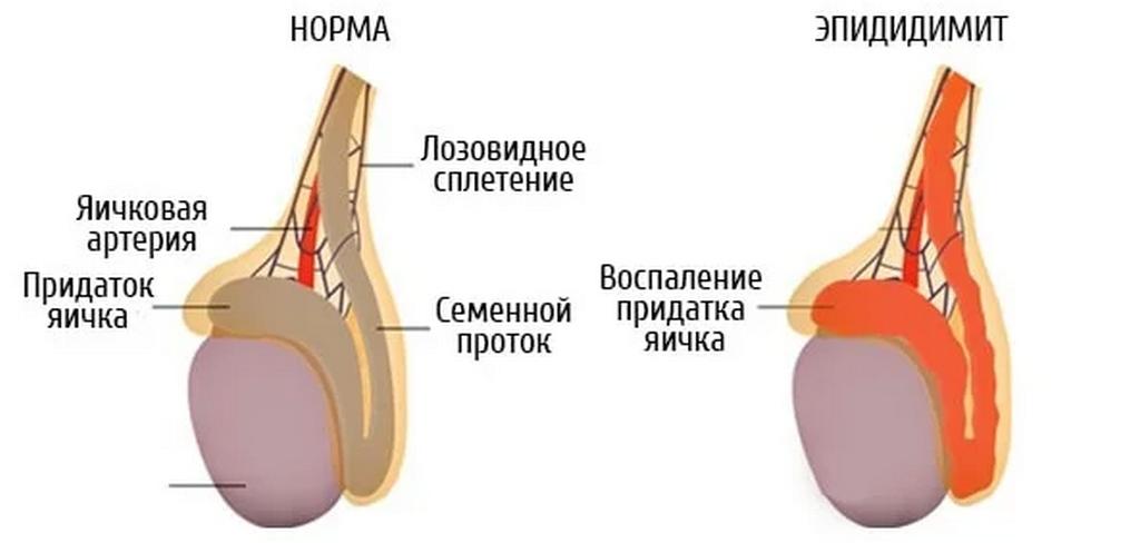 Классификация воспалений яичек у мужчин