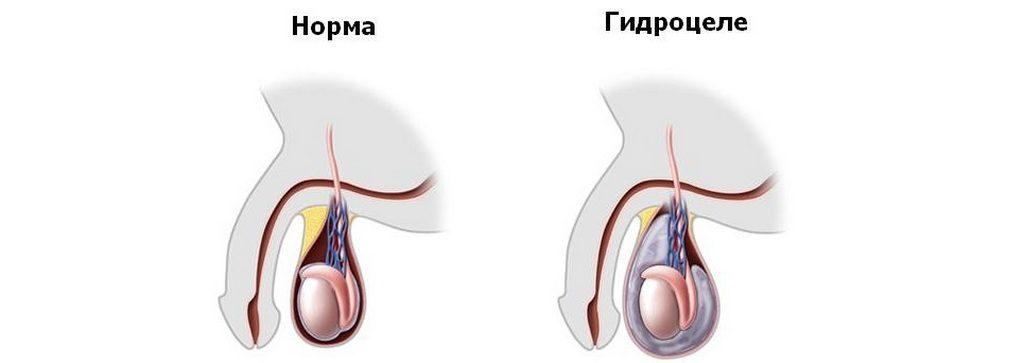 Классификация и виды гидроцеле яичка у мужчин и детей