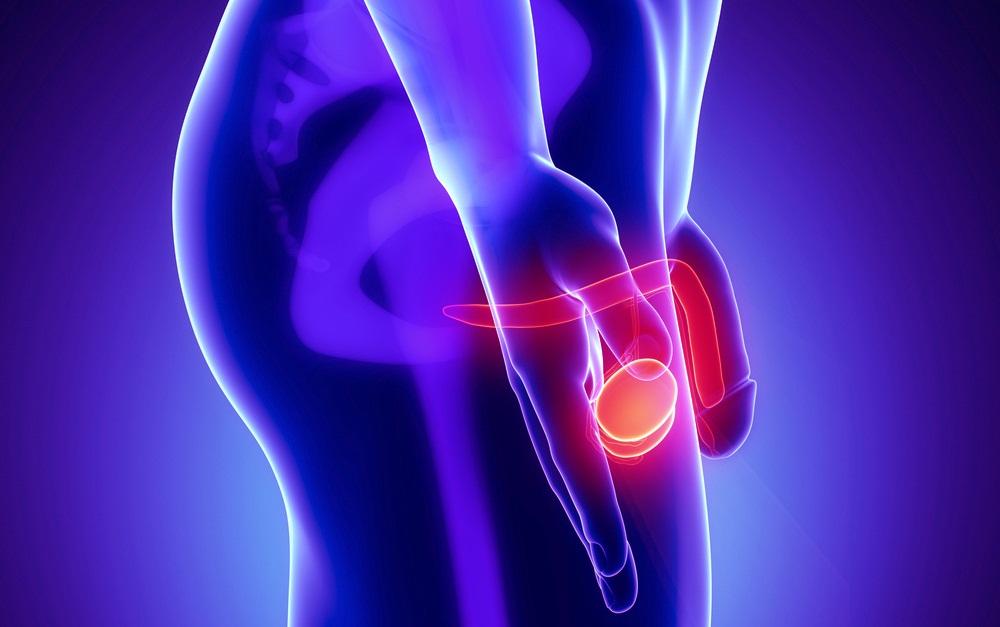 Киста яичка у мужчин: причины, симптомы и особенности лечения