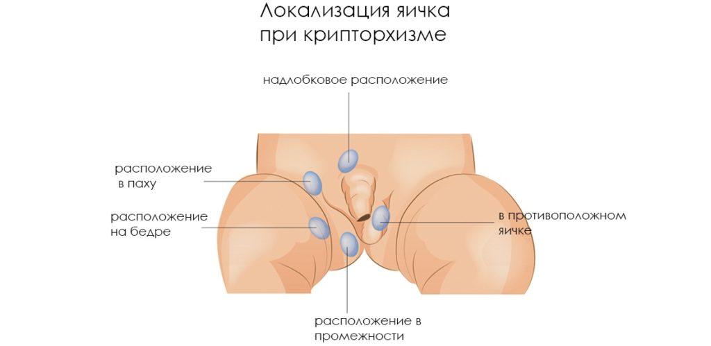 Показания к орхиэктомии