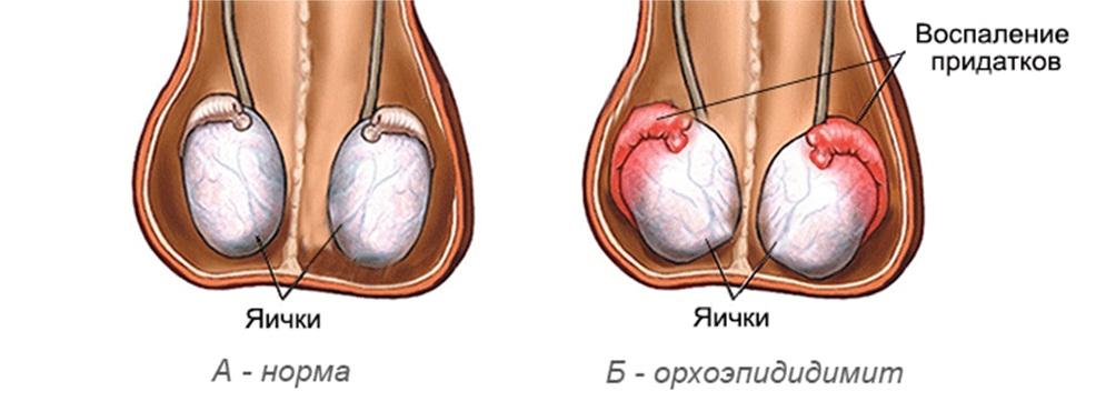 Симптомы орхоэпидидимита у мужчин
